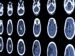 Stroke accelerates cognitive decline over time, study finds