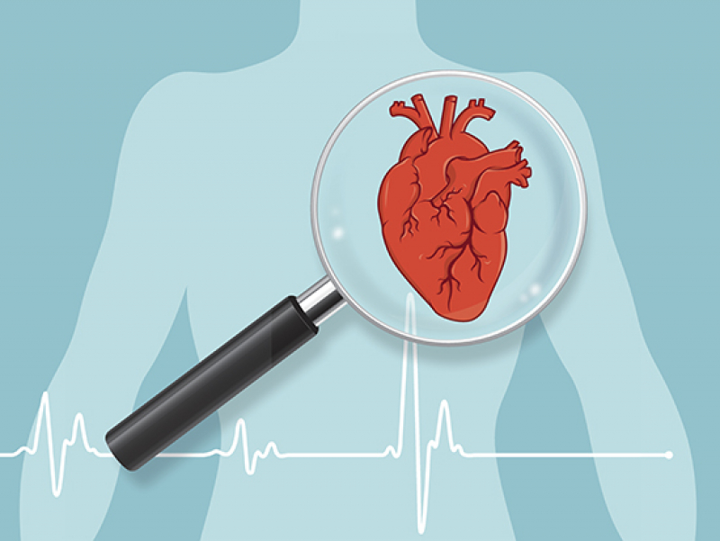 A kinase identified as possible target to treat heart failure