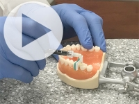 New cavity treatment offers no drilling, no filling