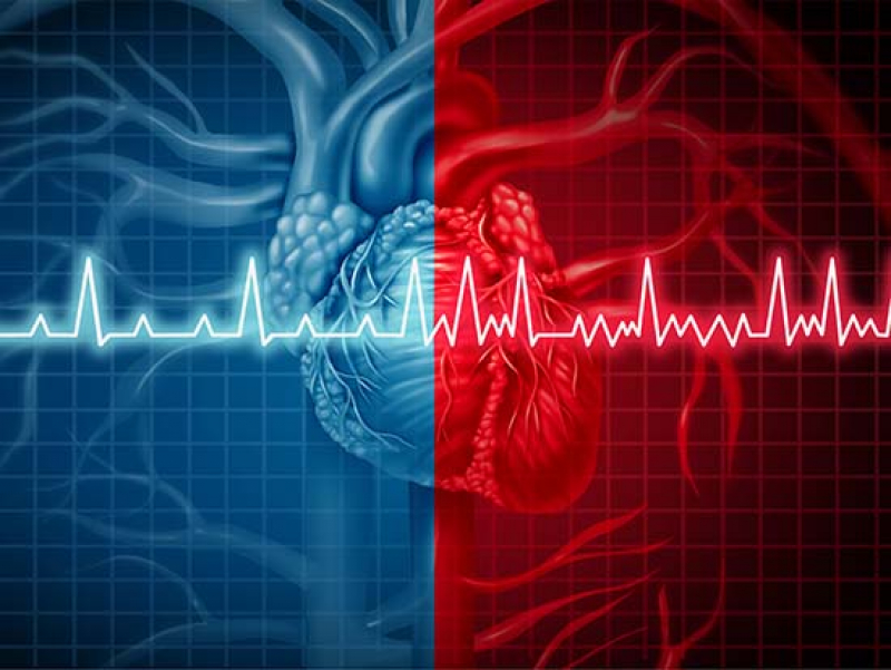 New research shows atrial fibrillation can be fatal even after strict control of blood pressure