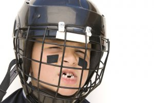 Sports dental injuries are no laughing matter