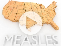 Risk of forgetting medical miracles: measles outbreak