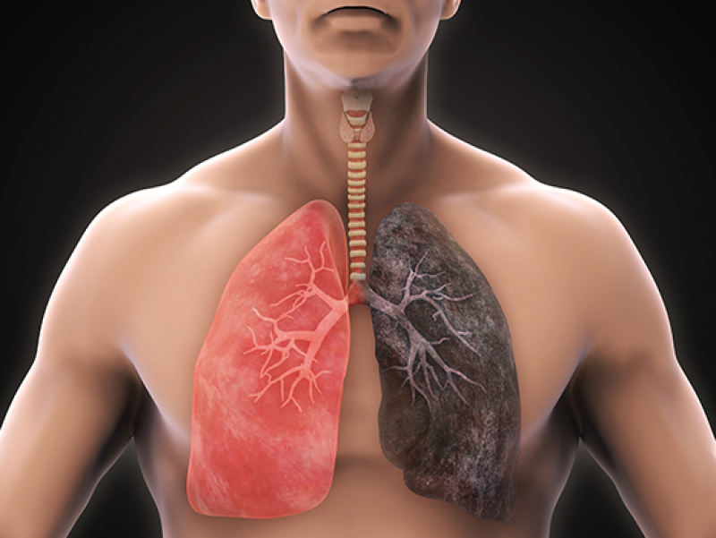 New CT scan analysis predicts respiratory illness and death in COPD