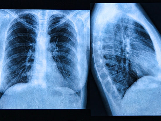 New triple-combination drug should benefit the majority of patients with cystic fibrosis