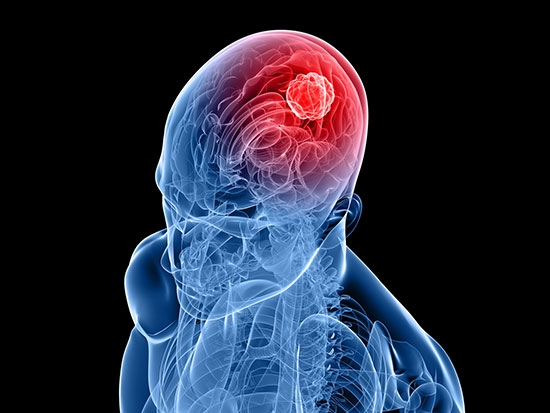 A novel anti-cancer chemotherapeutic agent inhibits glioblastoma growth and radiation resistance