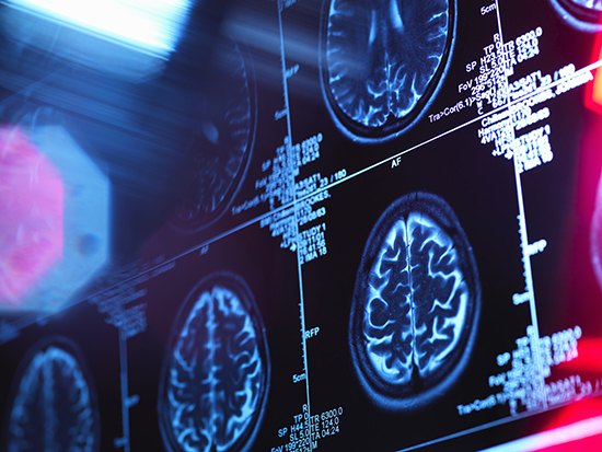 UAB study aims to learn more about 'silent strokes'