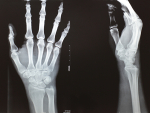 DREAM Challenge to automate assessment of radiographic damage from rheumatoid arthritis