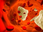 REGARDS investigators respond to criticism of new AHA/ACC cholesterol treatment guidelines