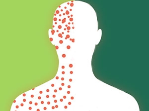 Boomers and Gen X: Are you immune to measles?