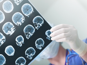 Data could help standardize use of therapeutic comas for epileptic patients