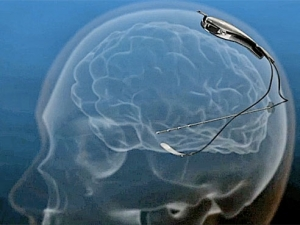 Brain implant 'senses' a seizure and acts to stop it