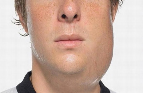 Important Information on Mumps